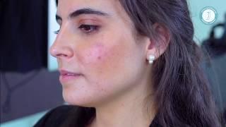 Testimonio tratamiento acne en México Clínica Racderma