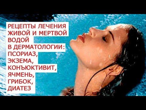 Аннинские воды псориаз лечат