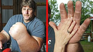 10 People With Unusual Body Parts