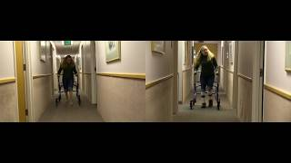 Before & After: knee hyperextension | DAFO FlexiSport