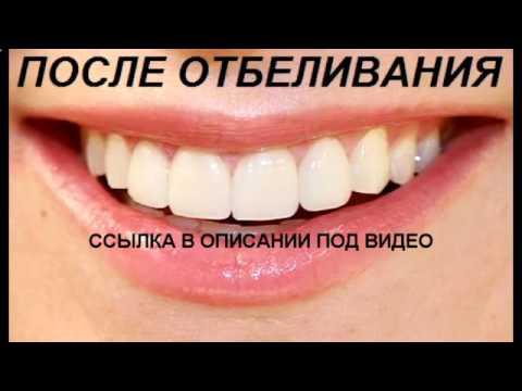 Как часто можно делать отбеливание зубов