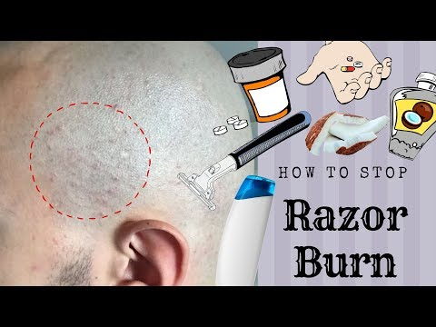 HOW TO STOP RAZOR BUMPS/BURN *Head Shave