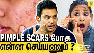 Dr Sethuraman Interview About Pimple Removing Tips & Treatment