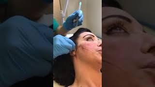Seconda parte del trattamento con i fili di trazione per il viso