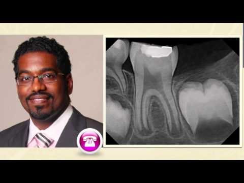 Case Reviews: With Dr. Rico Short Apexogenesis