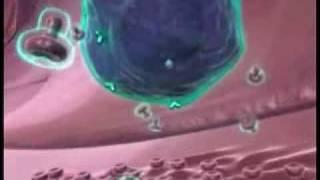 Multiple Scerosis - Interferon Beta