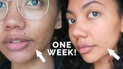 hqdefault - Acne Spots Not Fading
