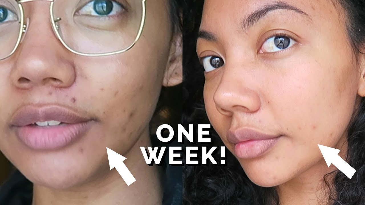 HOW TO FADE DARK SPOTS IN 1 WEEK!