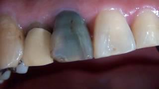 歯科厚木 団地会館歯科 前歯の着色した歯をイーマックで綺麗に厚木海老名団地会館歯科町田相模 thumbnail