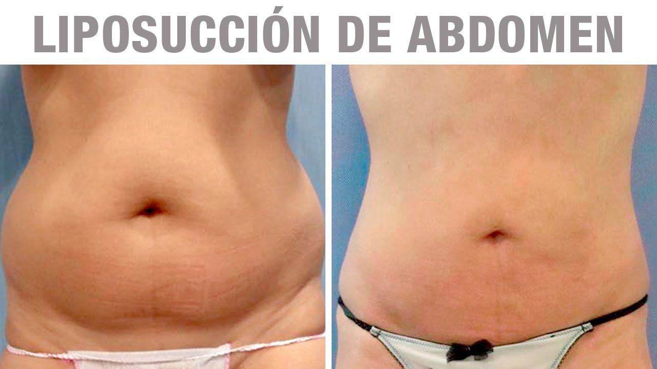 Dieta para adelgazar despues de una liposuccion