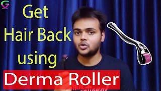 Derma Roller For Hair Regrowth | Hair Regrowth Result | Hindi