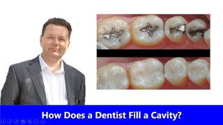 How Does a Dentist Fill a Cavity?