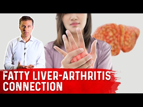 Why Does a Fatty Liver Triggers Arthritis?