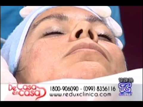 Electroporacion Facial