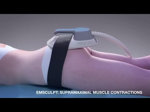 Emsculpt MOA for noninvasive butt lift