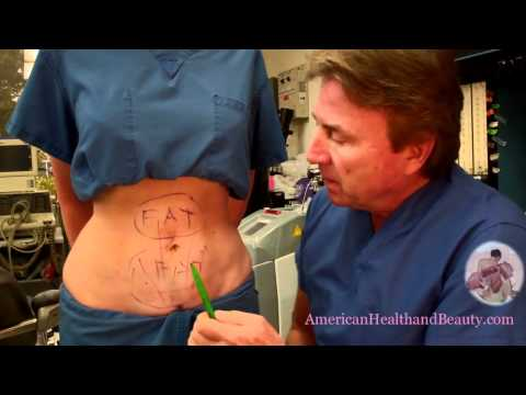 What Happens if you Gain Weight After Having Liposuction or a Tummy Tuck