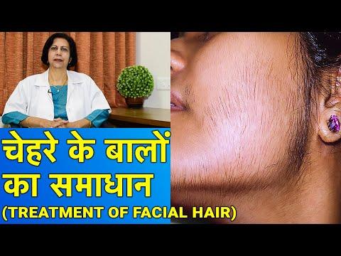 चेहरे के बालों का समाधान || Facial Hair Treatment (In HINDI)