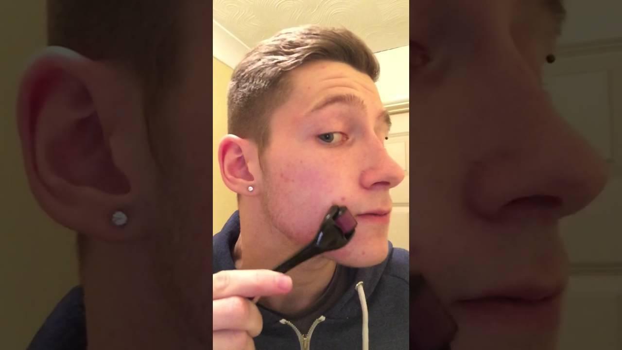 dermaroller beard