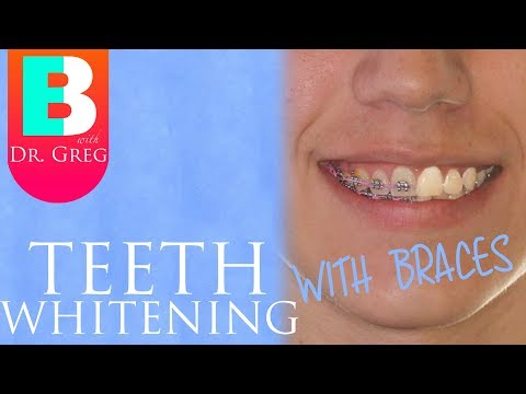 Teeth Whitening With Braces & Invisalign