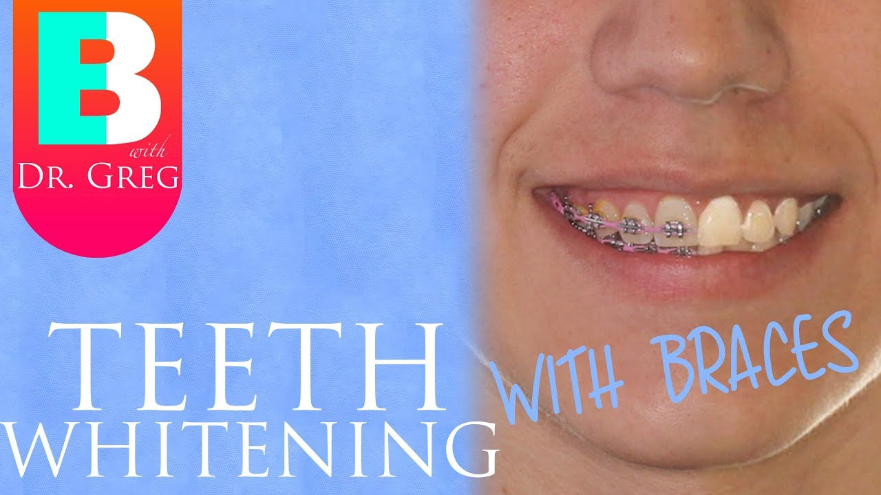 Teeth Whitening With Braces Invisalign Youtube