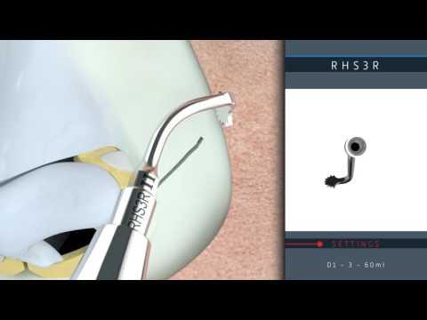 Rhinoplasty 3D protocol