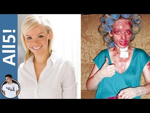 5 Horrific Acid Attacks!