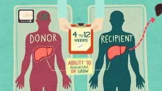 Organ Donation & Liver Transplantation