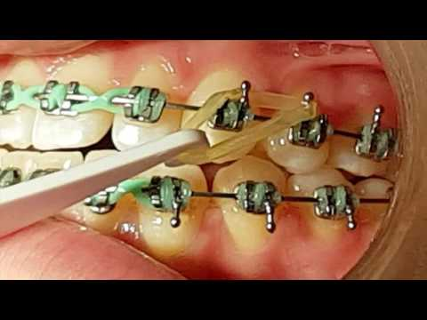 Orthodontics | Dentist Lethbridge | Cool Dental
