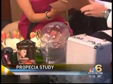 propecia-side-effects-and-alternatives---nbctoday