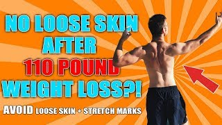 Lost Weight Stretch Marks But No Loose Skin?!