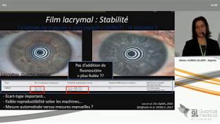 SFO 2019 - Analyse de la surface oculaire et critères du DEWS II