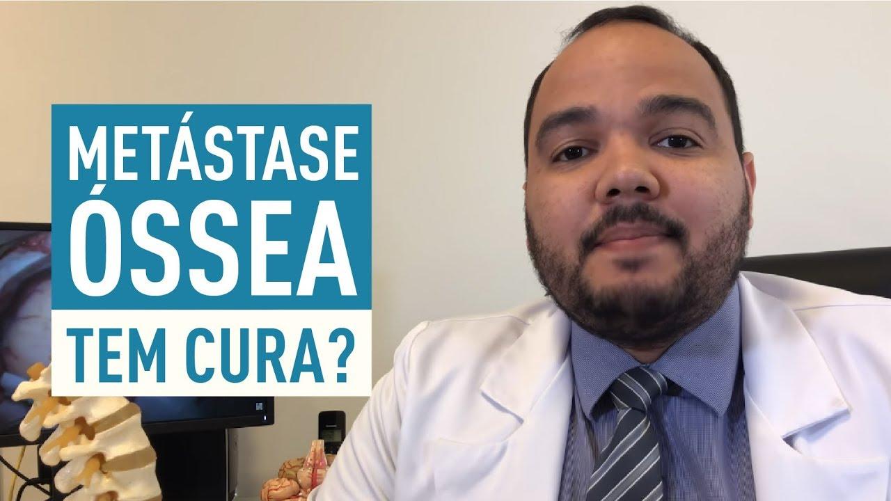 Metastase tem cura