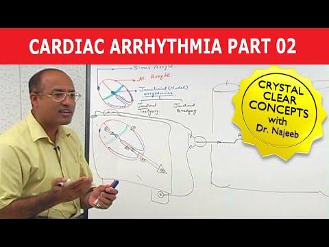 Cardiac Arrhythmia - Part 2/3
