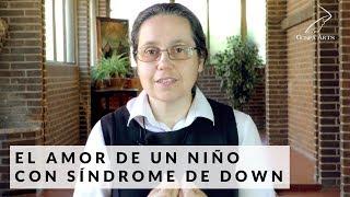 El amor de un niño con Síndrome de Down | Diosidencias