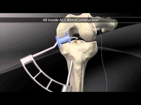 Chirurgie ligaments croisés antérieur. Technique chirurgicale de type DT4 Cavaillon
