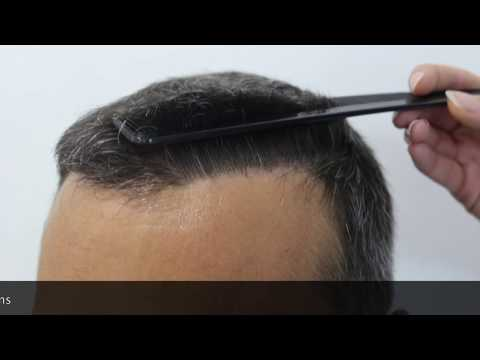 Hairtransplant result, Hairline Clinic Ankara, Hair transplant Turkey