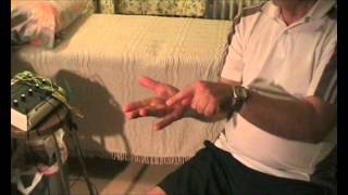 ariel tsai acupuncture knee pain dupuytren s contracture jul 11 wmv
