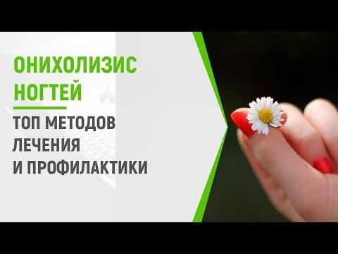 Онихолизис ногтей: ТОП методов лечения и профилактики