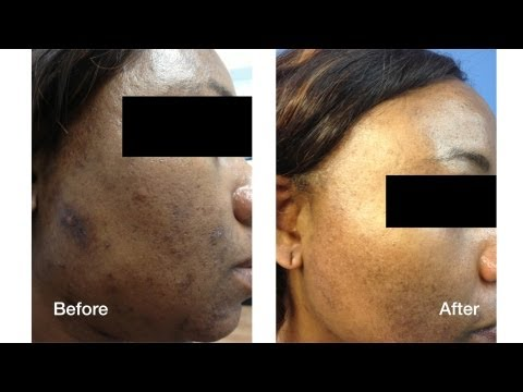 Dark Skin Laser Skin Care Treatments | Skin Perfect Brothers in Walnut, CA