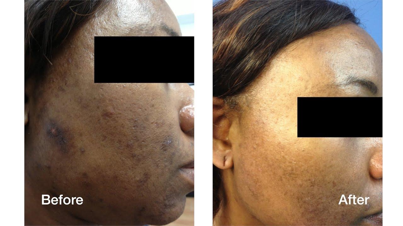 Dark Skin Laser Skin Care Treatments Skin Perfect Brothers In Walnut Ca