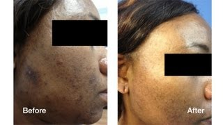 Dark Skin Laser Skin Care Treatments | Skin Perfect Brothers in Walnut, CA