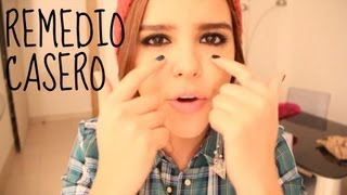 ¡ADIOS OJERAS, FACIL Y RAPIDO! ♥   -Yuya thumbnail