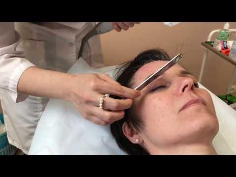Ультразвуковой SMAS-лифтинг на аппарате Ultraformer: безоперационная подтяжка лица