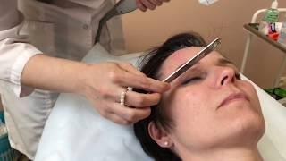 видео Smas лифтинг лица, ультразвуковой или безоперационный