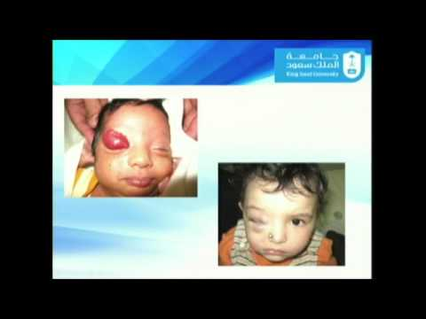 Update in Orbital and Periorbital and Hemangiomas and Vascular Malformation