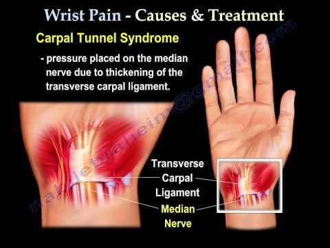 Wrist Pain Causes And Treatment Part Everything You Need To Know
