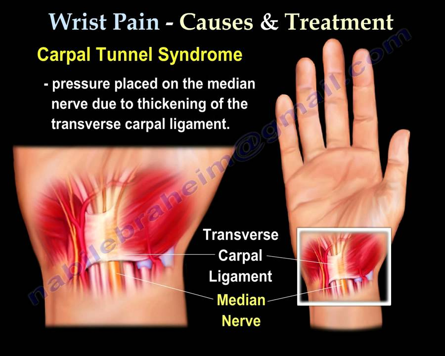 Carpal Tunnel Exercise Forearm