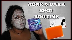 hqdefault - Does Noxema Help Acne