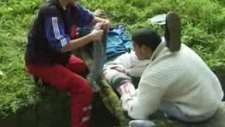 Otvoreni prelom butne kosti-Open femur fracture