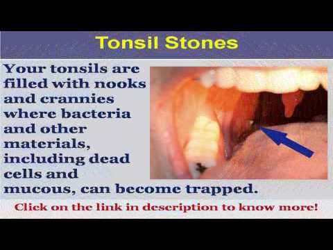 See now  what do tonsil stones look like